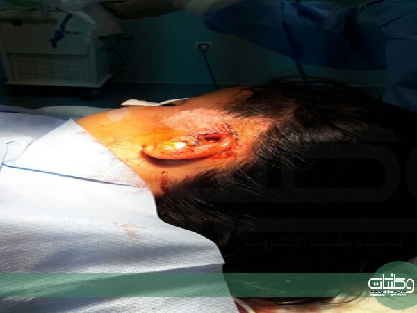 فريق طبي مستشفى #بللحمر ينجح في إعادة أذن طفلة تعرضت لحادث دهس