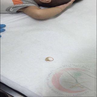 هلال #القصيم يُخرج خاتماُ تسبب باختناق  لطفل عمره 4 أشهر