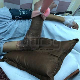 طوارئ عسير المركزي تستقبل حالة شاب 14عاماً يُحتمل تعرضه للدغة قنديل البحر