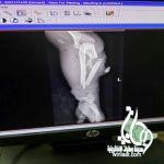 فريق طبي بمستشفى عسير المركزي ينقذيد يد أربعيني من البتر